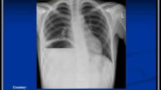 Chest X-ray Interpretation --subphrenic Abscess