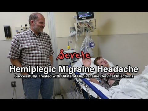 Hemiplegic Migraine Successfully Treated with Bupivacaine Cervical Injections