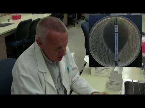 Etest for antibiotic susceptibility