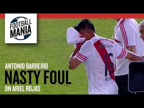 VIDEO: Let op: veel bloed bij elleboogstoot aan Rojas