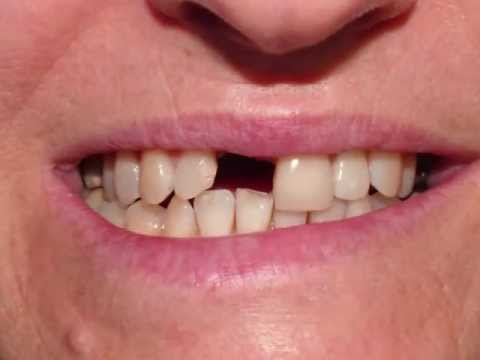 How to fix the missing front tooth - Dental Implant Crown