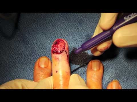 Amputation - This video demonstrates how to perform a completion amputation of a distal fingertip. Getting the amputation performed correctly at the time of initial prese...