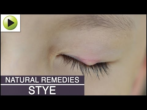 how to cure eye stye