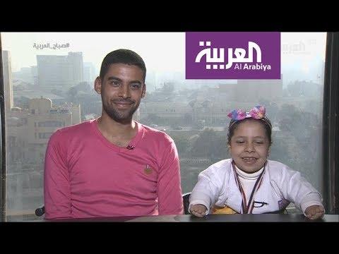 العرب اليوم - شاهد: لقاء طريف مع طفلة مصرية تحدت الاعاقة
