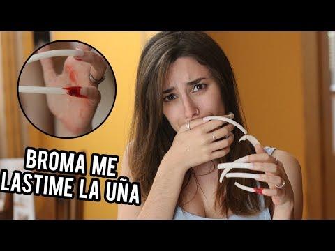 Videos de uñas - BROMA A MI NOVIO: ME ARRANQUÉ UNA UÑA POR ACCIDENTE  Lyna Vlogs
