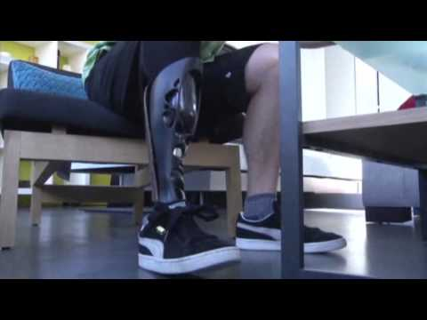 New Technology Lets Amputees Design Legs