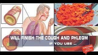 The Cough And Phlegm will Finish when use This Natural Syrup !  Health is gold, Every day we update useful videos to help you :Natural Cures Method  Please...