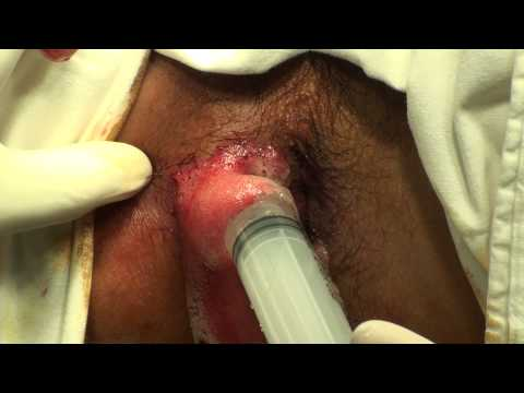 PERIANAL ABSCESS - This video contains scenes of surgical operation. It may not be suitable to some people. Viewer discreation is advised.