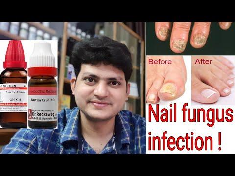 Neail Fungus
