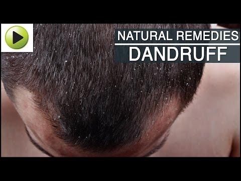 Hair Care - Dandruff - Natural Ayurvedic Home Remedies
