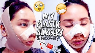 Video MY PLASTIC SURGERY IN KOREA | V-Line & Rhinoplasty Surgery & Recovery MP3, 3GP, MP4, WEBM, AVI, FLV November 2018