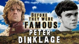Video PETER DINKLAGE - Before They Were Famous MP3, 3GP, MP4, WEBM, AVI, FLV Oktober 2018