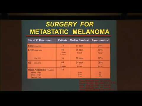 Surgery for Metastatic Disease