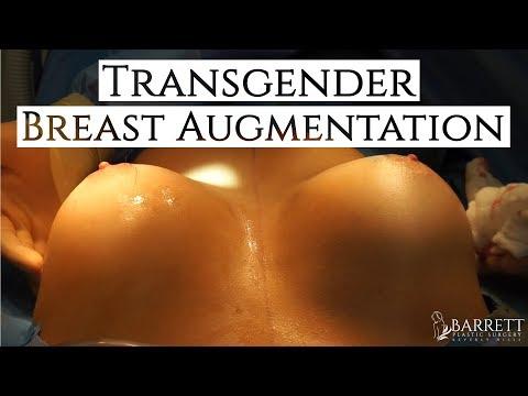 Dr Barrett's Transgender Breast Augmentation | Transgender Breast Surgery