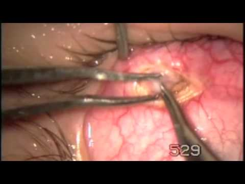 Inferior oblique myomectomy 1