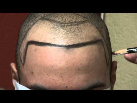 how to fix a receding hairline naturally