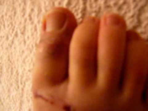 comment soulager une fracture d'orteil