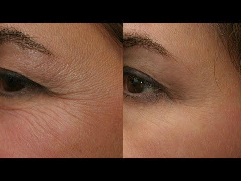 Reduce WRINKLES naturally | Ayurvedic home remedy