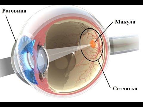 Разрывы сетчатки глаза- причины и лечение