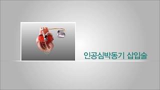 인공심박동기삽입술 미리보기