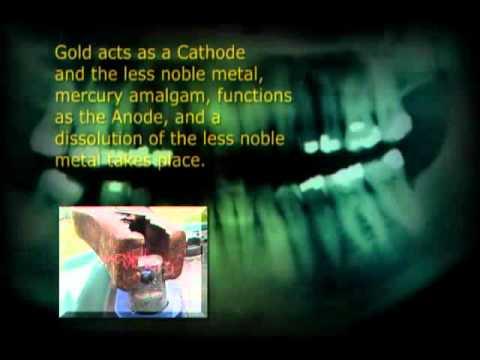 Quecksilber The Strange Story of Dental Amalgam 2004