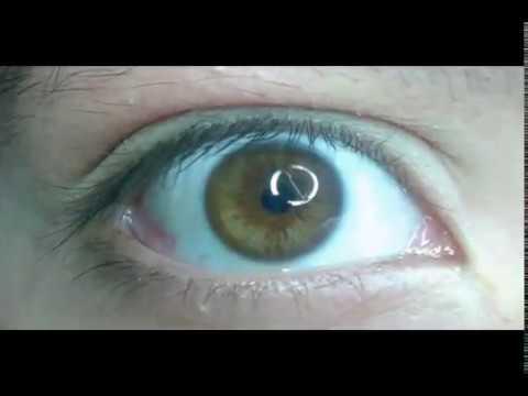 Biokinesis, cambio de color y despigmentación de iris con audios (café a verde en 7 días)