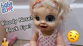 Video Baby Alive Emma Gets a Black Eye & Bloody Nose?! 😳 | Kelli Maple MP3, 3GP, MP4, WEBM, AVI, FLV Desember 2018