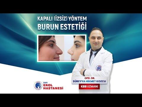 Kapalı Yöntem Burun Estetiği - Opr. Dr. Süreyya Hikmet Kozcu - İzmir Ekol Hastanesi