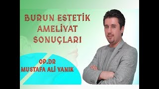 Op. Dr. Mustafa Ali Yanık burun estetiği öncesi ve sonrası sonuçları