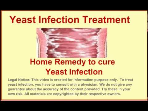 how to properly treat a yeast infection