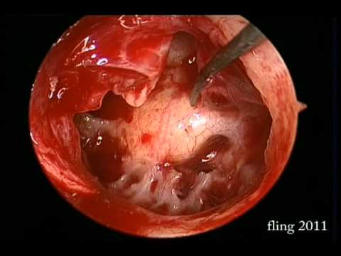 Left Ear Tympanoplasty - Endoscopy