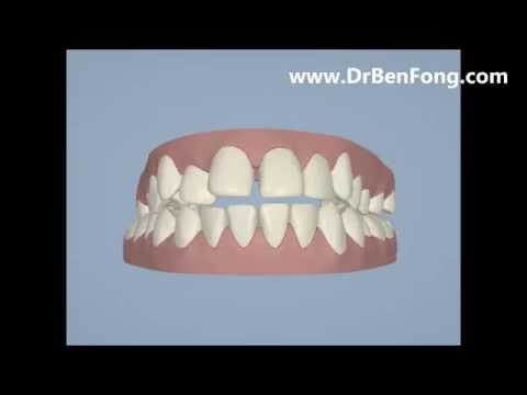 Invisalign Results for Ayanleh A.| Before & After | www.invisalignresults.ca