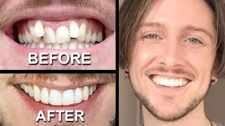 Video INVISALIGN REVIEW - everything you need to know MP3, 3GP, MP4, WEBM, AVI, FLV Agustus 2019
