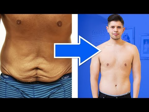 I Got Surgery To Get Rid Of My Loose Skin