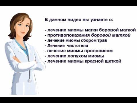 Лечение миомы народными средствами. Как сейчас лечат миому - видео на сайте VideoVortex.ru