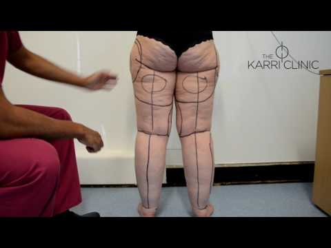 LIVE SURGERY: Liposuction for Type IV Stage II Lipoedema by Mr Vasu Karri   Before & After Images