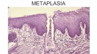 Neoplasia l