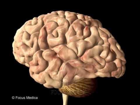 salute - cosa comporta l'amnesia