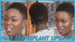 Video Hair Transplant \ Hairline lowering UPDATES + Favorites Natural Hair Products MP3, 3GP, MP4, WEBM, AVI, FLV September 2018