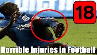 Horrible Injuries in Football/Lesões Graves no Futebol (+18)