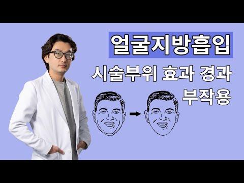 얼굴지방흡입 시술 부위, 효과, 붓기, 멍, 경과, 부작용