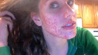 Beauty Blogger's Acne Transformation