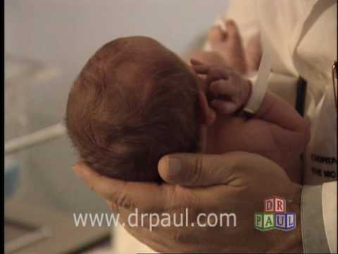Baby Small Head Image:baby Has Small Soft Spot