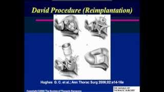 Cardiology Grand Rounds: Repairing Valves: Why And Why Not?