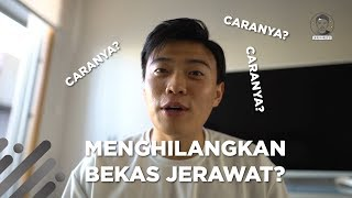 Video 👦CARA MENGHILANGKAN BEKAS JERAWAT!?👦 MP3, 3GP, MP4, WEBM, AVI, FLV September 2019