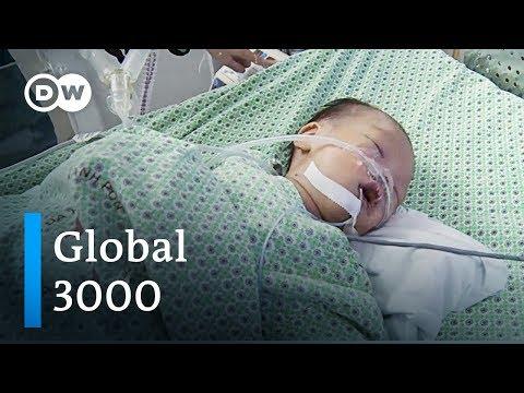 Bezahlbare Medizintechnik in Vietnam | DW Deutsch