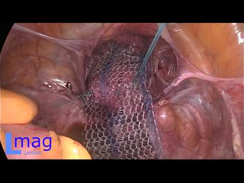 Лапароскопическая ликвидация рецидива генитального пролапса через год после промонтофиксации