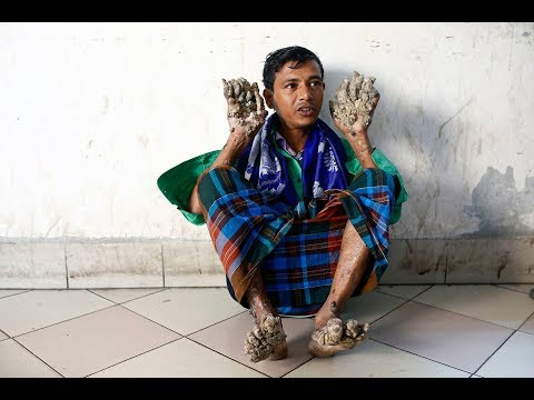 Abul Bajandar, »Baum-Mann« aus Bangladesch, hofft auf  ...
