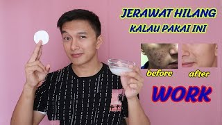 Video JERAWAT HILANG KULIT MAKIN PUTIH CERAH - INI RAHASIANYA MP3, 3GP, MP4, WEBM, AVI, FLV September 2019