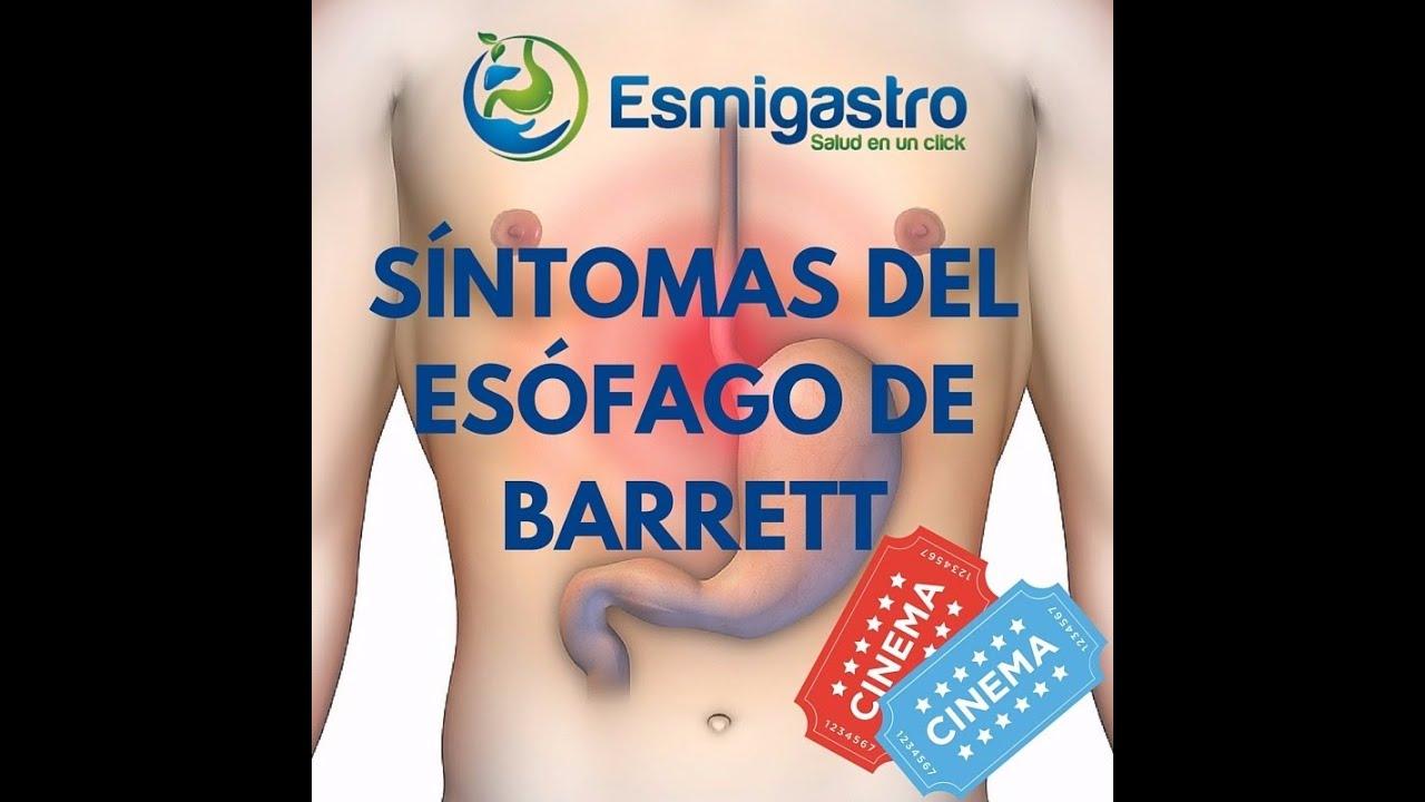 Síntomas del esófago de Barrett